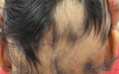 Alopecia Totalis and Universalis
