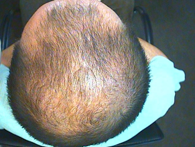 Male and Female Pattern Hair Loss